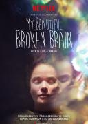 我美丽易碎的大脑