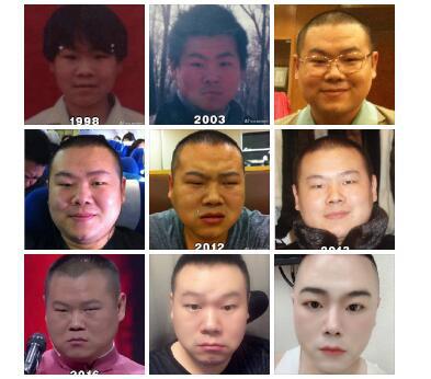 """岳雲鵬""""顏值逆生長""""! 自曝1998年至今照片"""