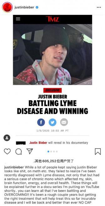 比伯自曝患上莱姆病 艾薇儿力挺并呼吁大家多关注