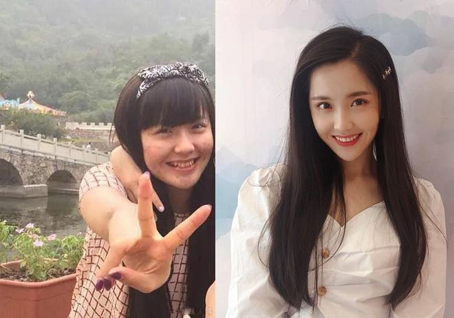 allbet开户:王艺瑾减肥对比照曝光 像杨幂的她原来是个小胖妞 第1张