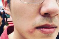 路子野?劉昊然拍《我和我的家鄉》被蜜蜂蟄