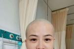 岳云鵬老婆生病住院?曬剃光頭照透露將做小手術