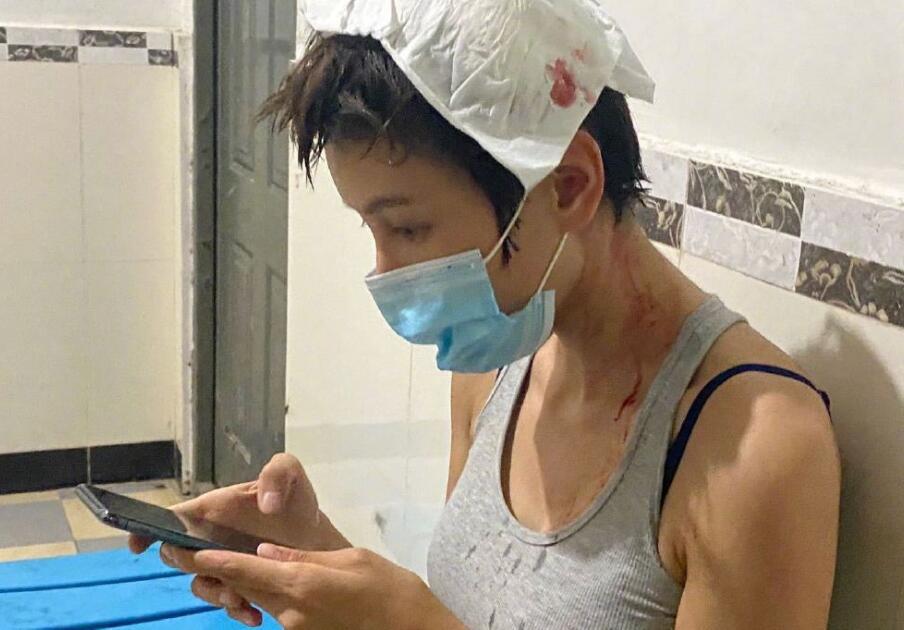 allbet官网开户网址:张蓝心拍戏受伤头部流血 经纪人回应:伤口3厘米