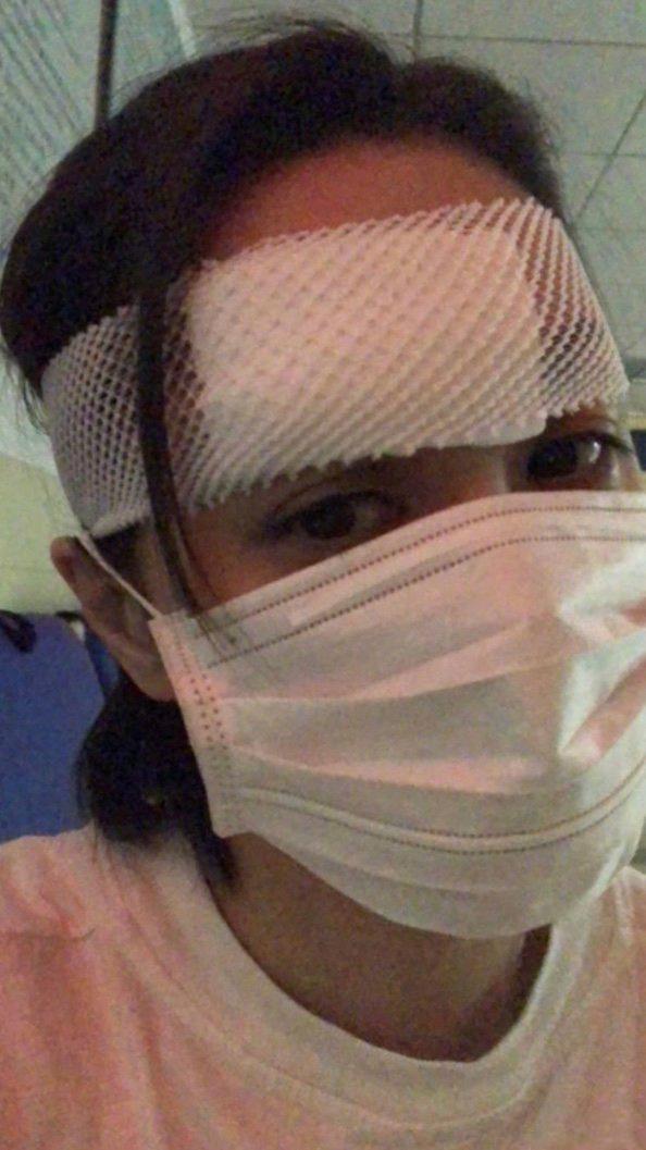 allbet手机版下载:杨受成透露钟欣潼伤势细节 或需要做第二次手术 第2张