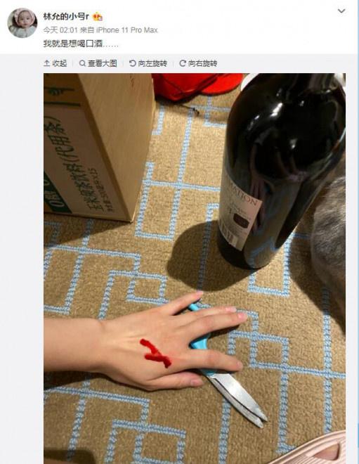 环球ug客户端:林允受伤出血小号连发照片 网友:摄影比止血主要